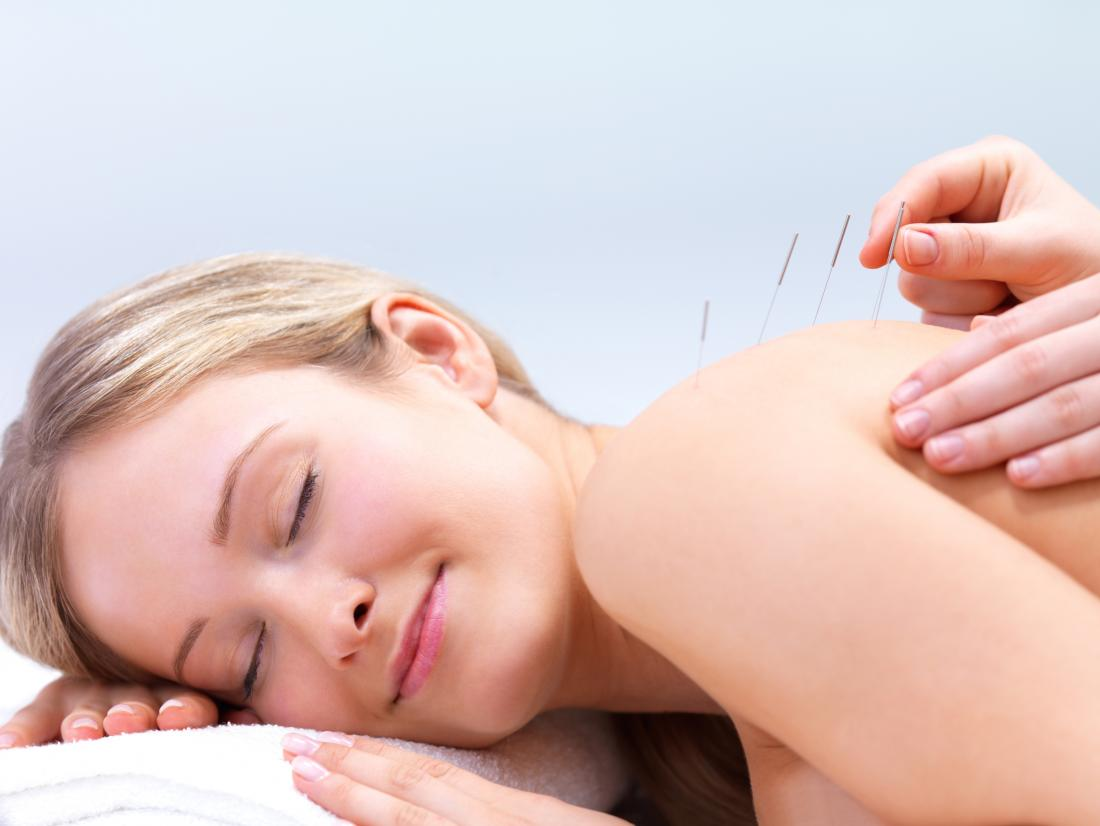 dry needling vs acupuncture<!--mce:protected %0A--> treatment
