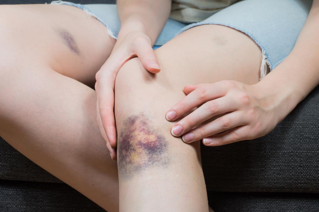 Bruising with hemophilia