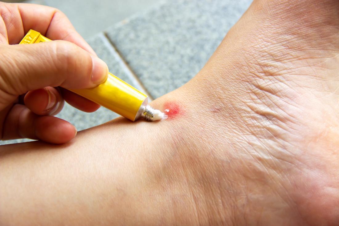 Person putting antihistamine cream on a bite on ankle