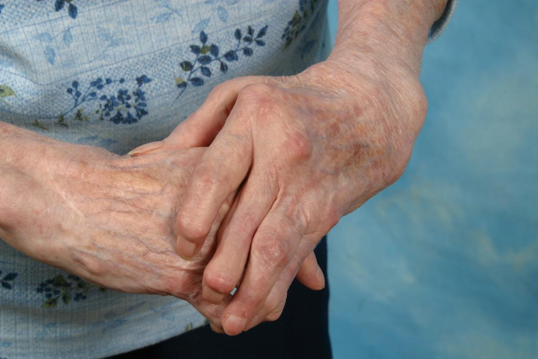 Arthritic hands folded.