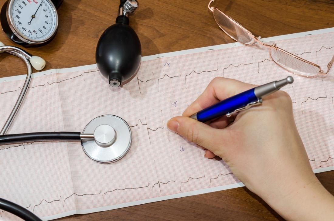A-fib diagnosis cardiogram