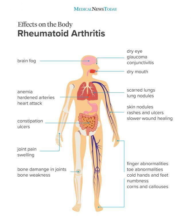 Effects on the body of rheumatoid arthritis infographic