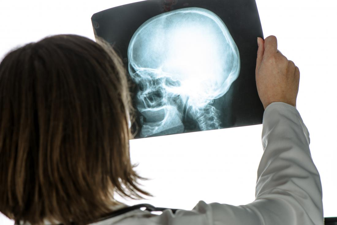 Doctor looking at a skull X-Ray looking for a fracture