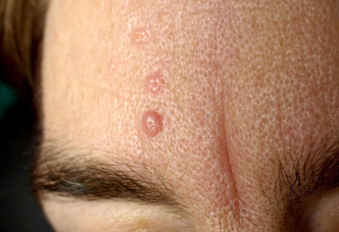 Seborrheic dermatitis. Image credit: klaus d peter gummersbach, 2009