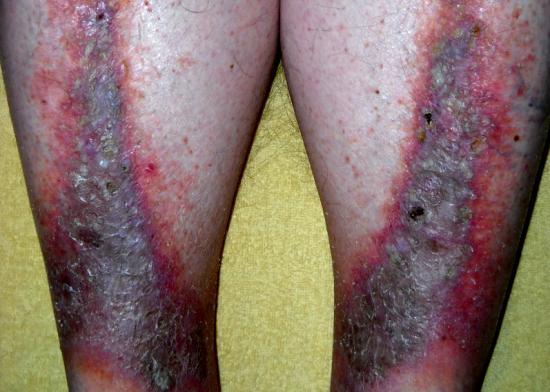 Stasis dermatitis. Image credit: Cardiologist61, 2013.