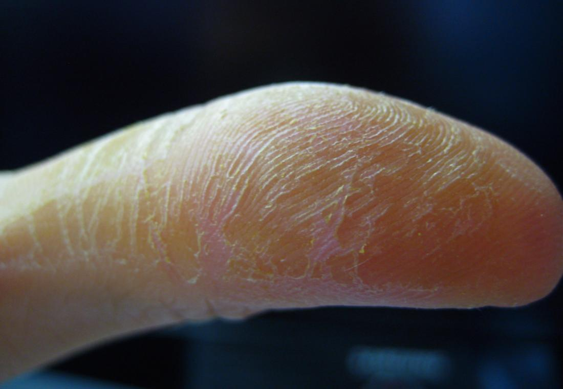 Contact dermatitis. Image credit: Lauren Jill Ahrold, 2008.