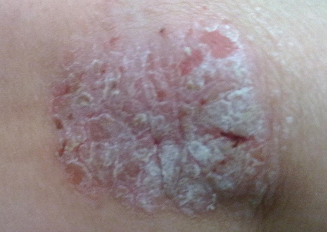 Psoriasis on elbow. IMage credit: Alborz Fallah, 2013.