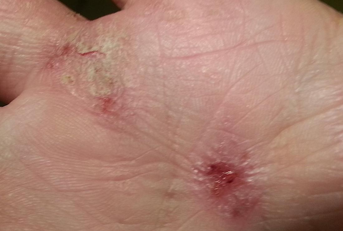 Eczema. Image credit: Assianir, 2013.