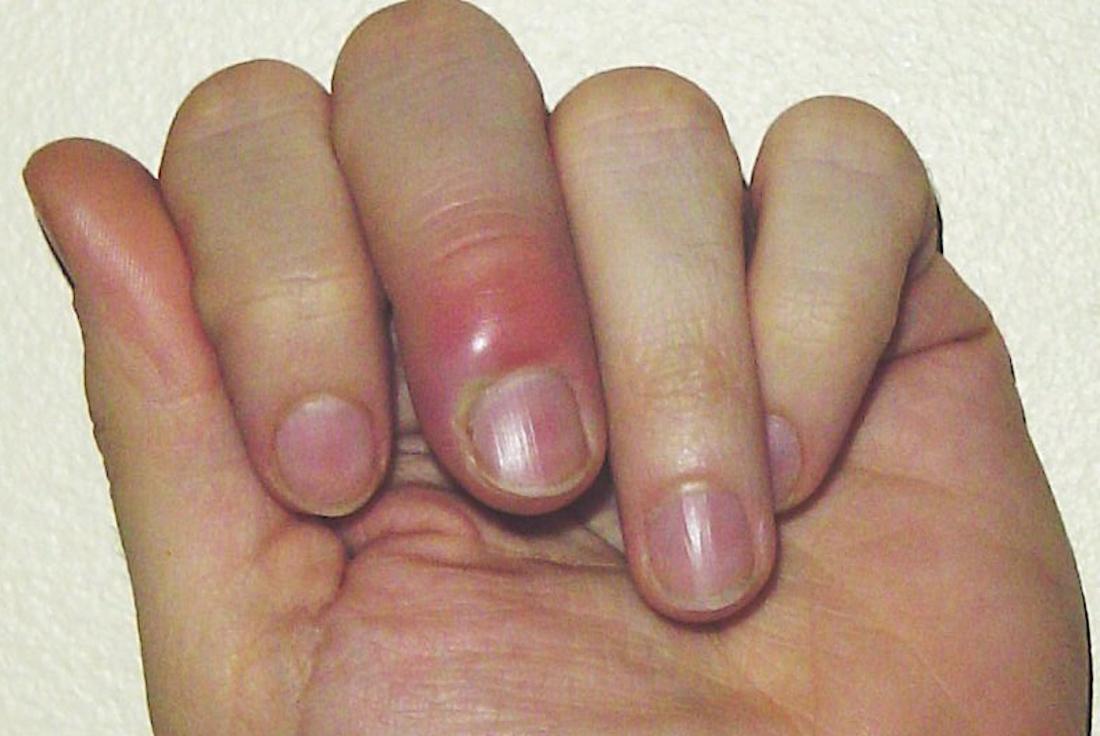 fingernail bed inflammation paronychia image credit chris craig 2007