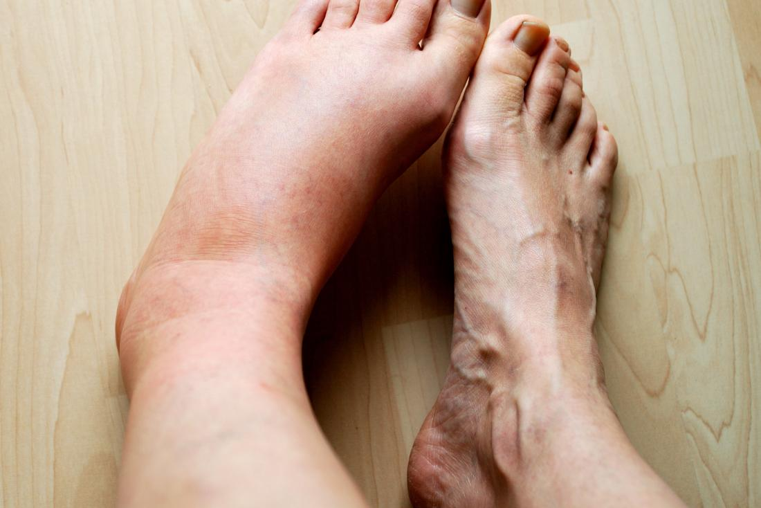 Aspirin ibuprofen swollen feet