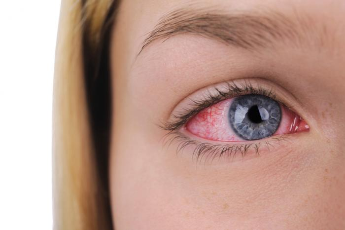 a ladies right eye that is bloodshot