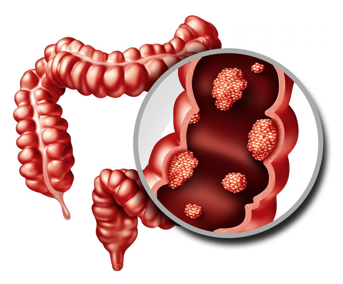 an illustration of colon cancer