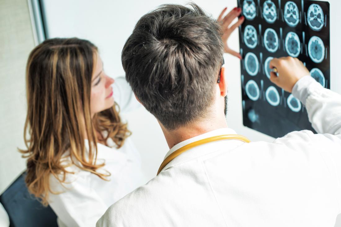 doctors looking at brain scans