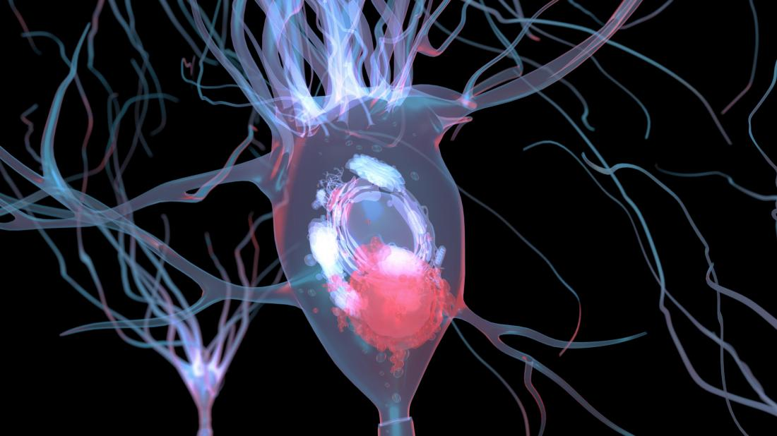 neuron with lewy bodies