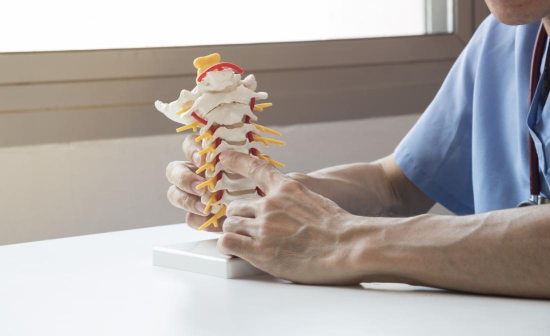 Rheumatoid arthritis back pain spinal