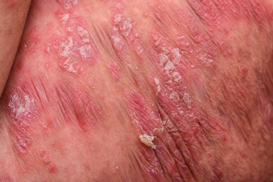 Plaque psoriasis image