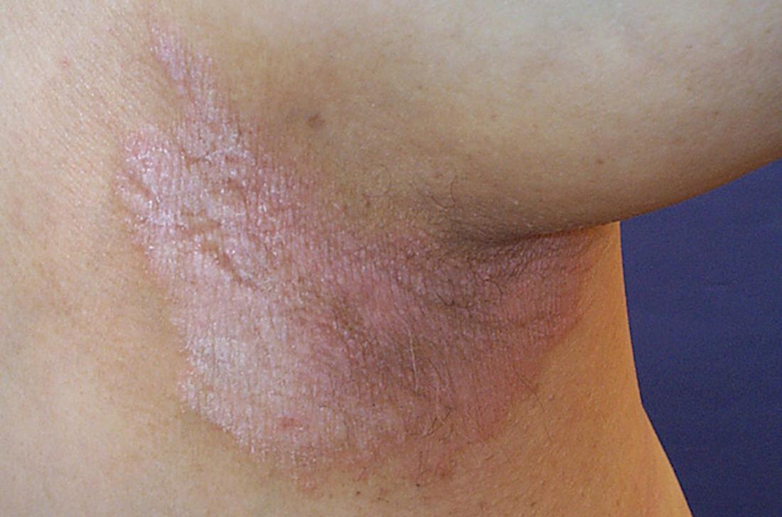 inverse psoriasis under arm image credit dermnet new zealand
