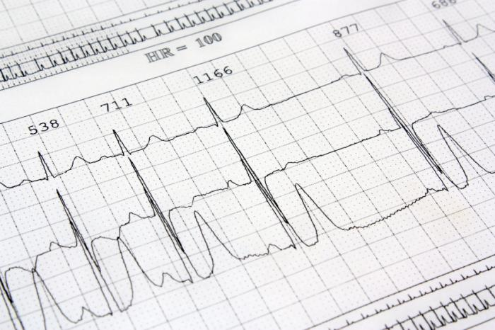 ECG print out