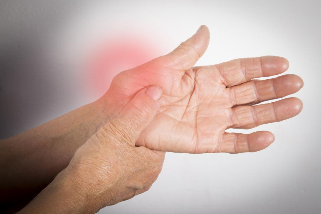 rheumatoid arthritis in the left hand
