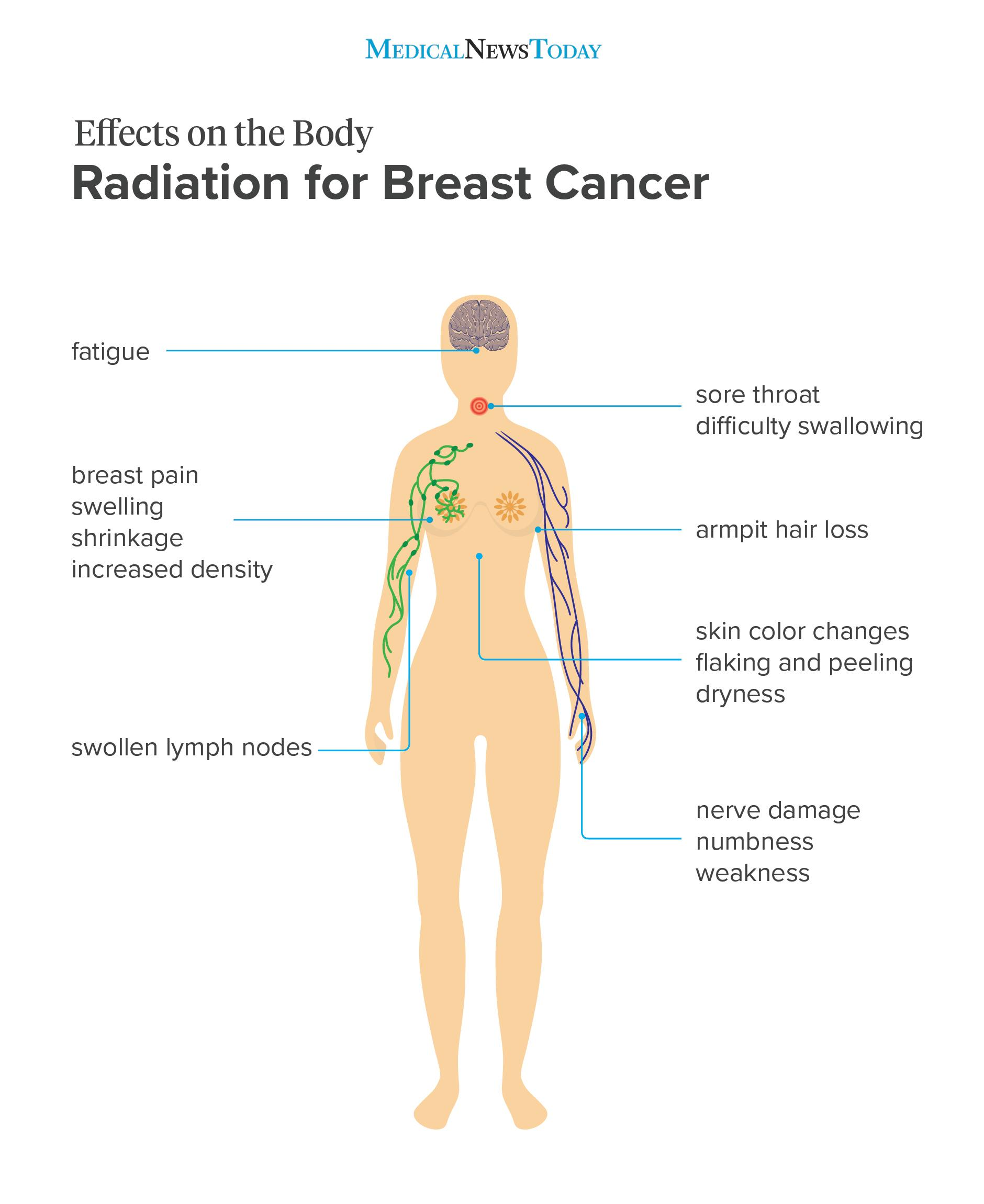 Radiation for breast cancer infographic <br>Image credit: Stephen kelly, 2018</br>