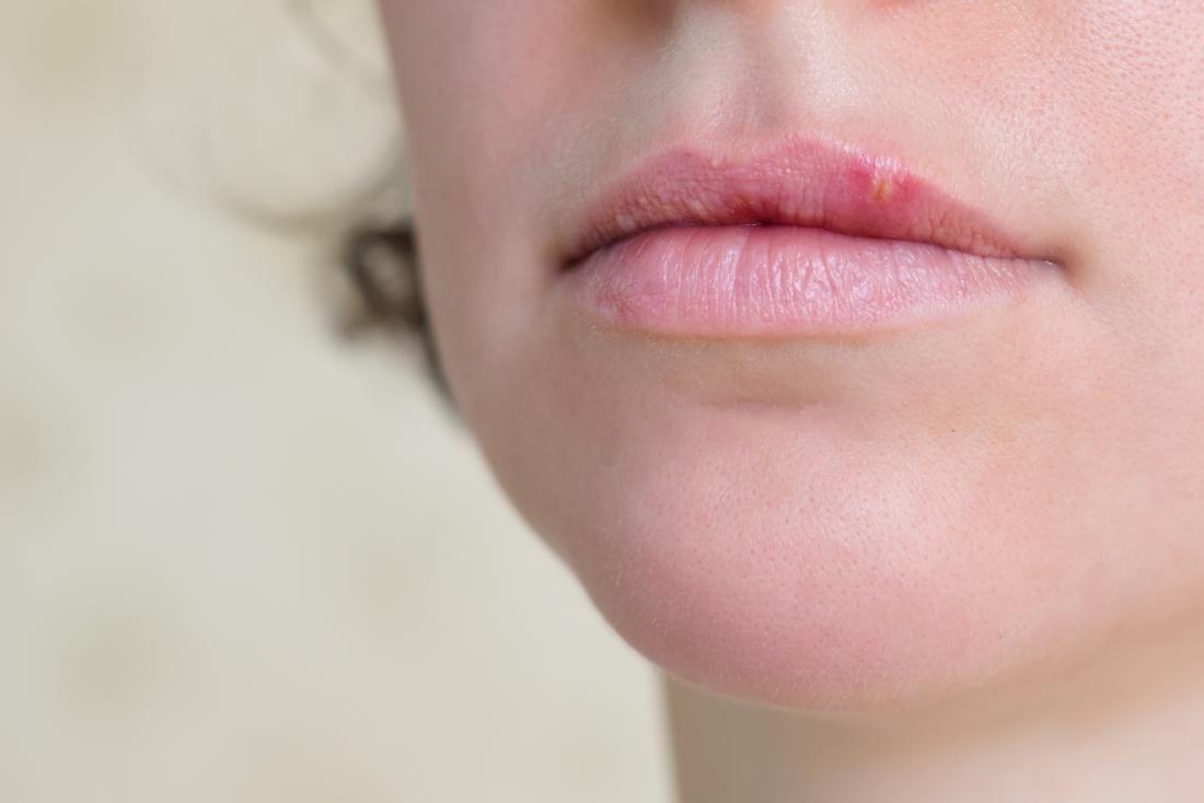 Woman with herpes on lip