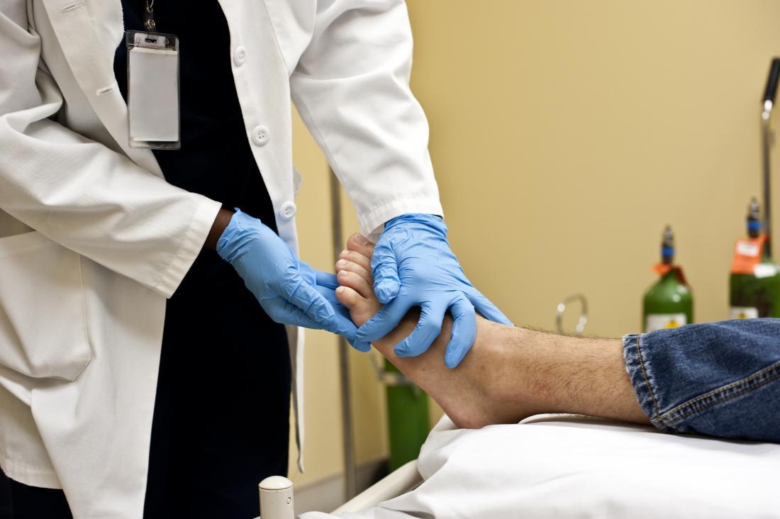 Doctor feeling skin on bottom of patient's foot.