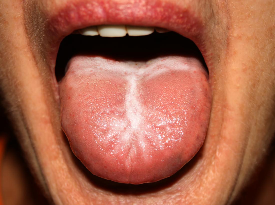 Candidiasis on the tongue