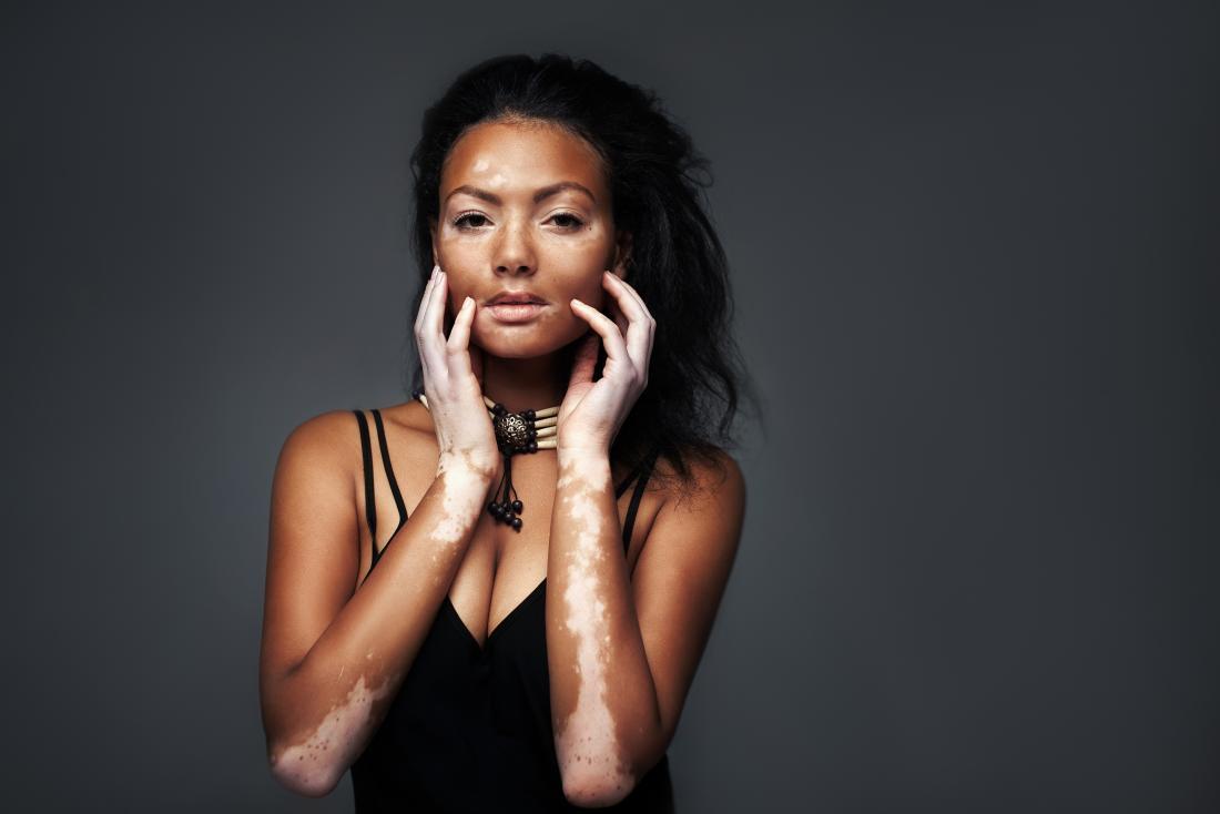 discolored skin patches vitiligo