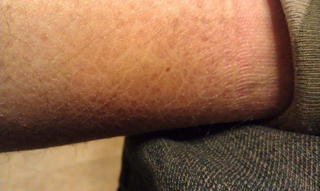 skin affected by ichthyosis vulgaris. image credit skoch3 2012