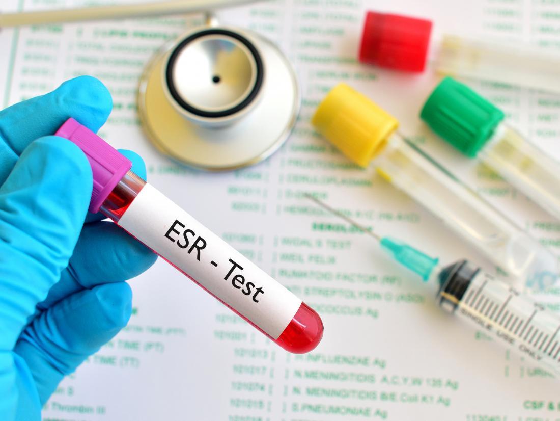 ESR blood test