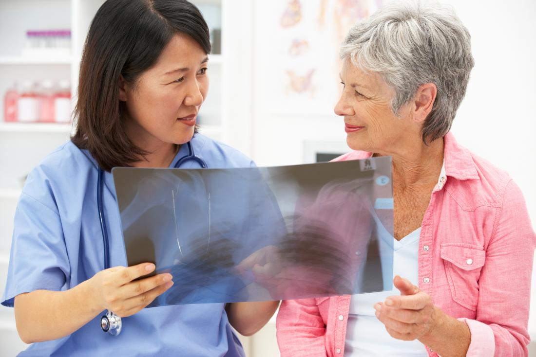 Woman looking at x-ray of lungs with nurse.