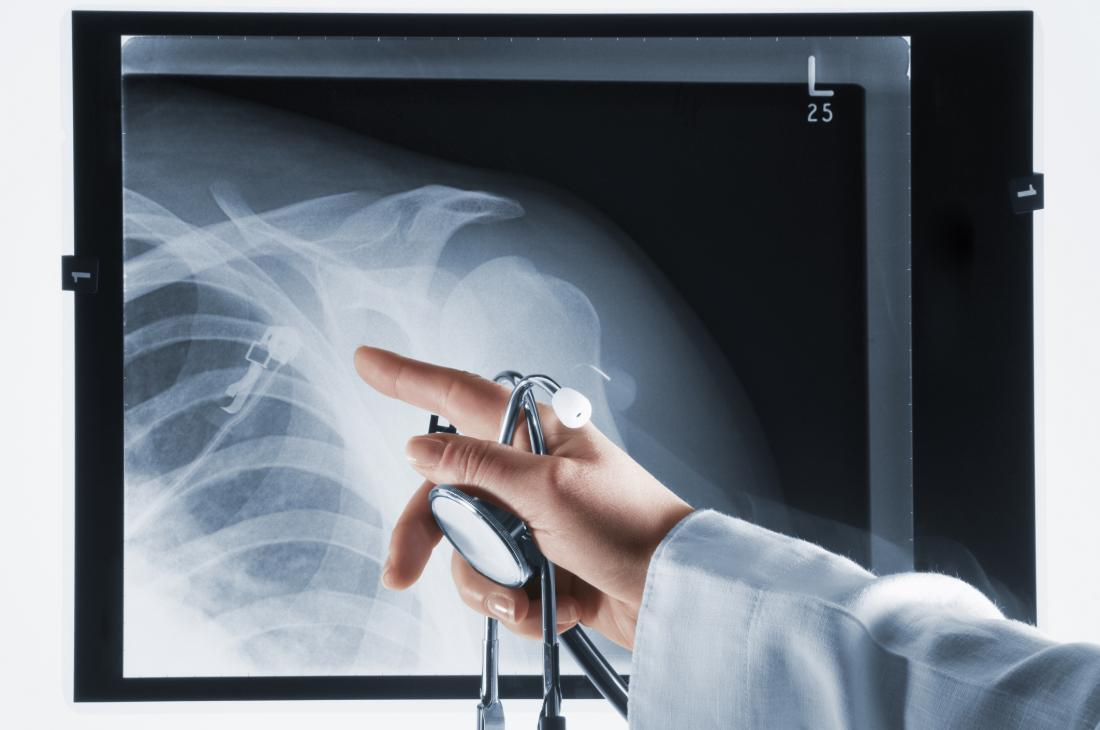 Shoulder X-ray being pointed at by a doctor
