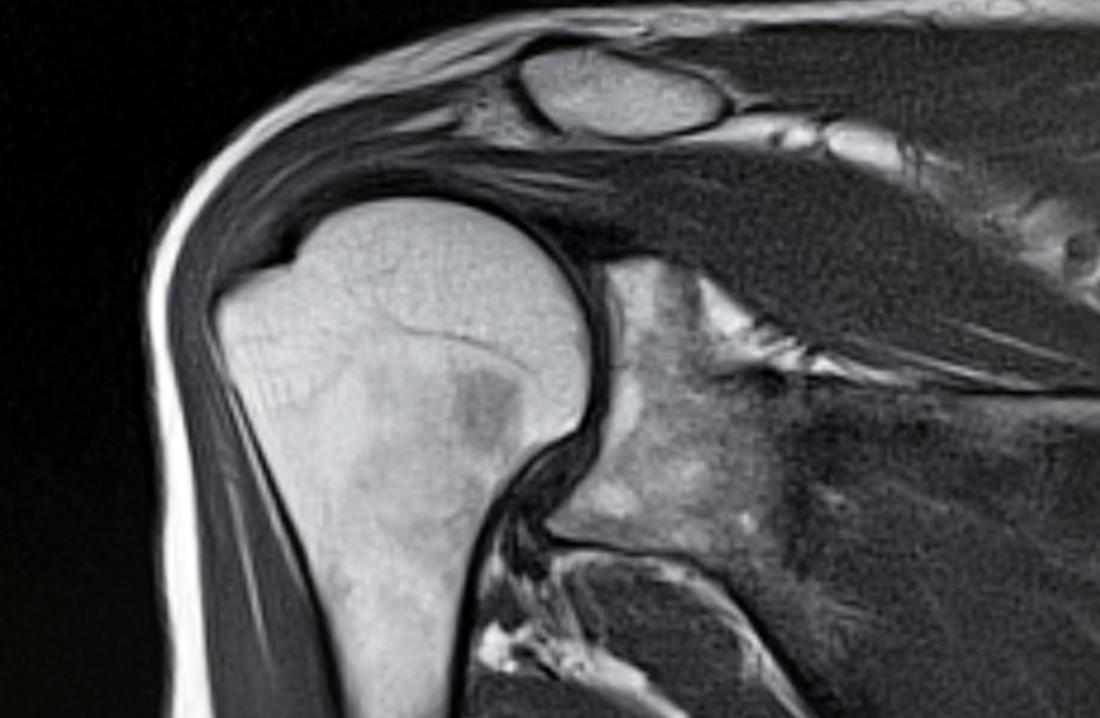 MRI scan of shoulder joint and bones.
