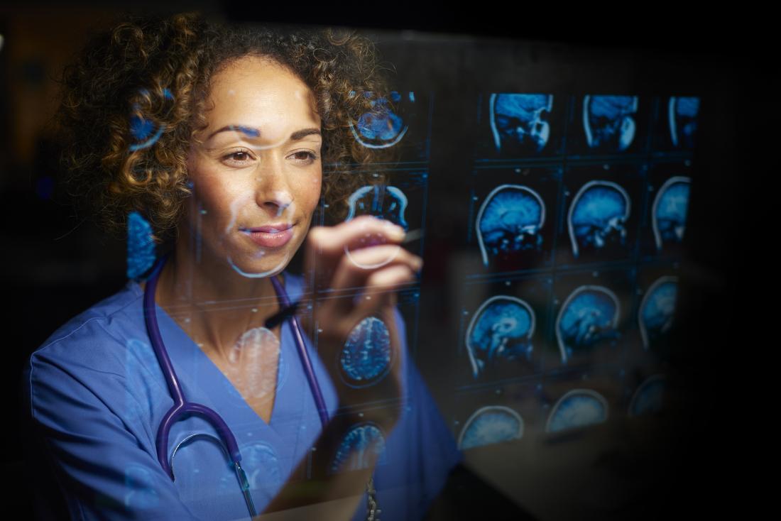 Doctor examining MRI scans of brain.