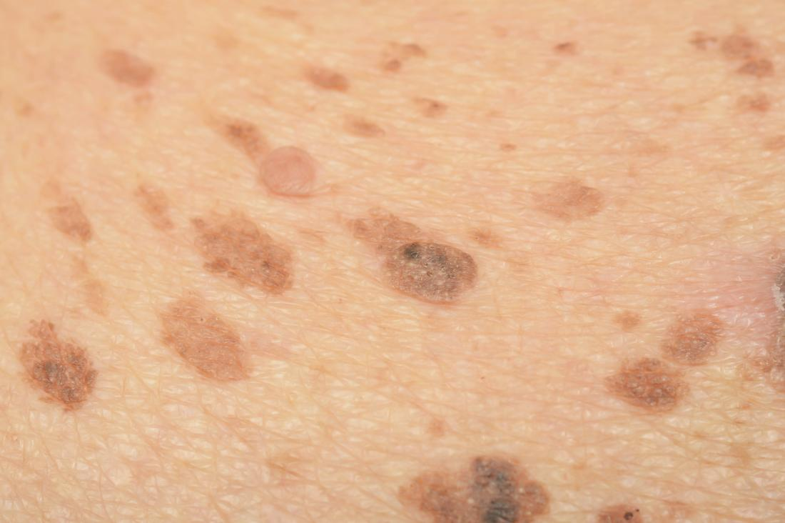 Melasma freckles on skin.