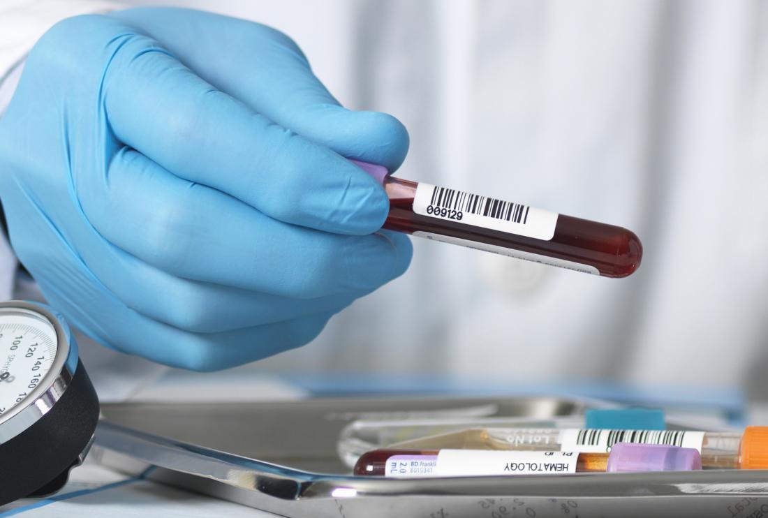 Gloved hand holding blood sample for asma test