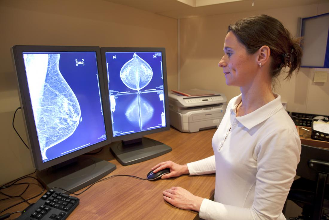 An early diagnosis of breast cancer increases the chance of recovery.