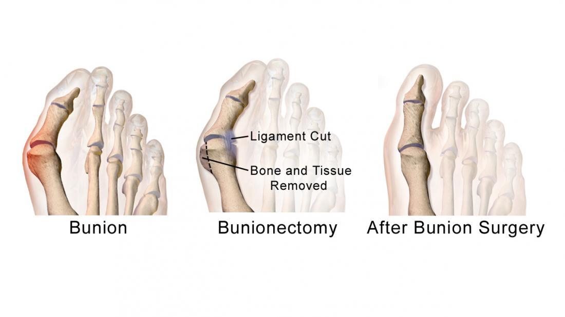 Bunionectomy