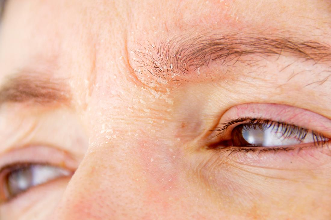 eczema or Seborrheic dermatitis on eyebrows of frowning person