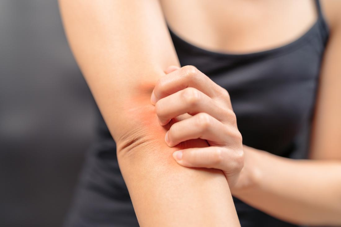Woman itching due to menopause