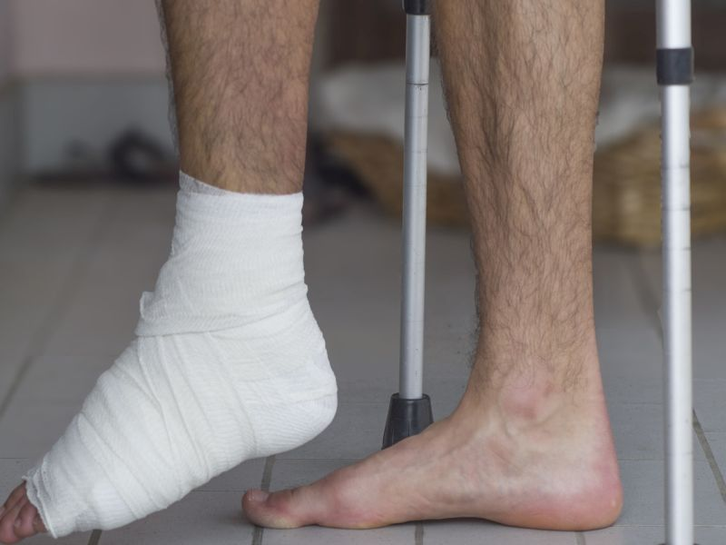 News Picture: Ditch the Cast: Some Broken Ankles May Heal in Half the Time