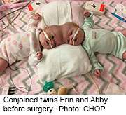 the twins before surgery