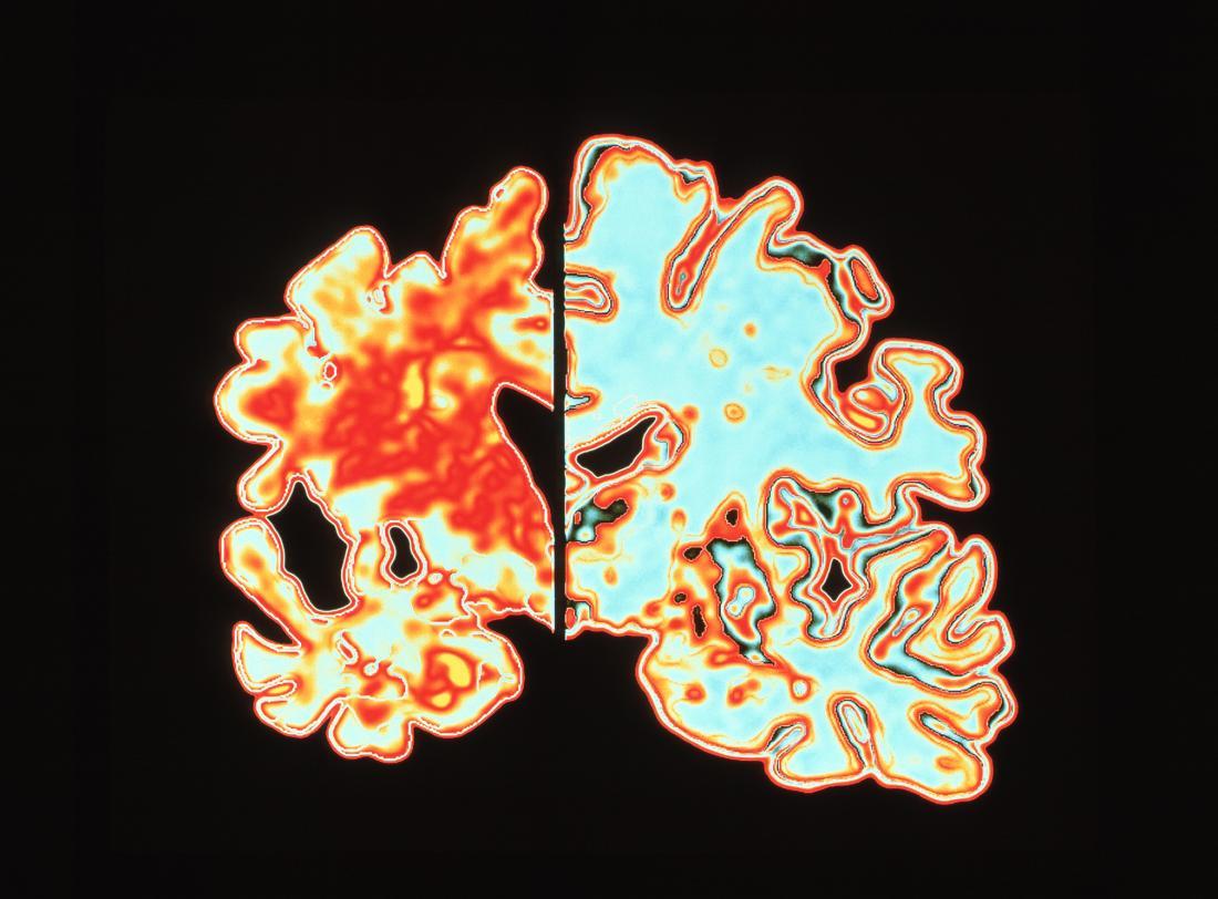 Dementia Alzheimer's brain scan
