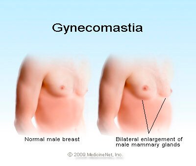 Picture of male on the left with no gynecomastia and the male on the right with gynecomastia