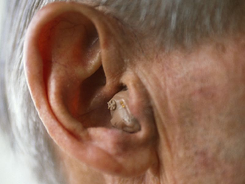 News Picture: Hearing Aid Upkeep Often Out of Reach for the Poor