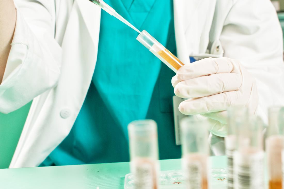 Urine test for marijuana in the body