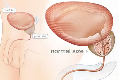Enlarged Prostate (BPH) Symptoms, Diagnosis, Treatment