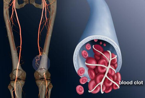 DVT in Pictures: Symptoms of Deep Vein Thrombosis, Beyond Leg Pain and More