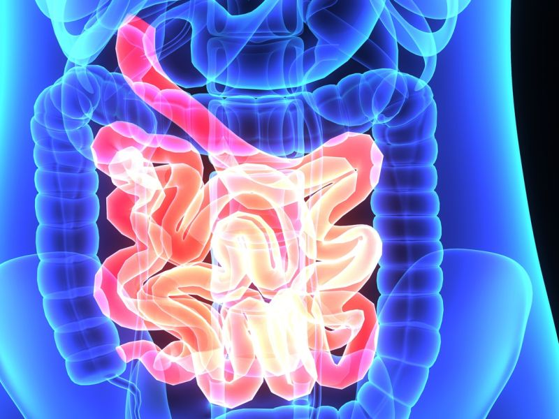 News Picture: 'Poop Transplants' May Help Ease Painful Colitis