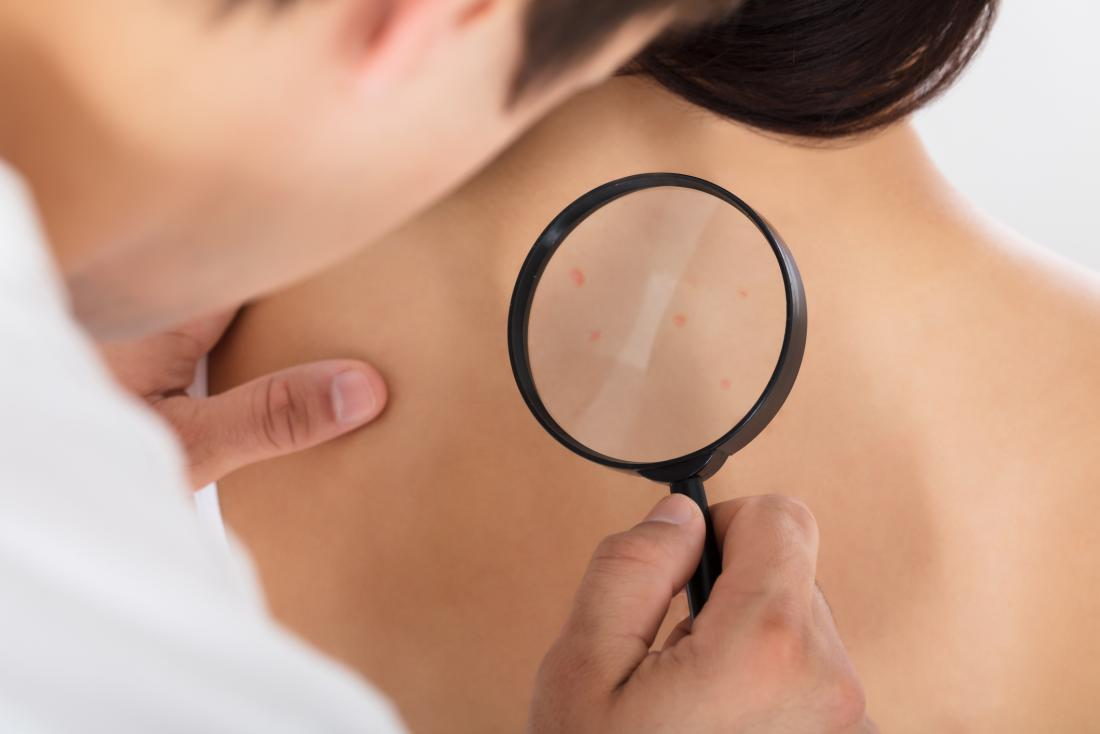 doctor checking for skin cancer